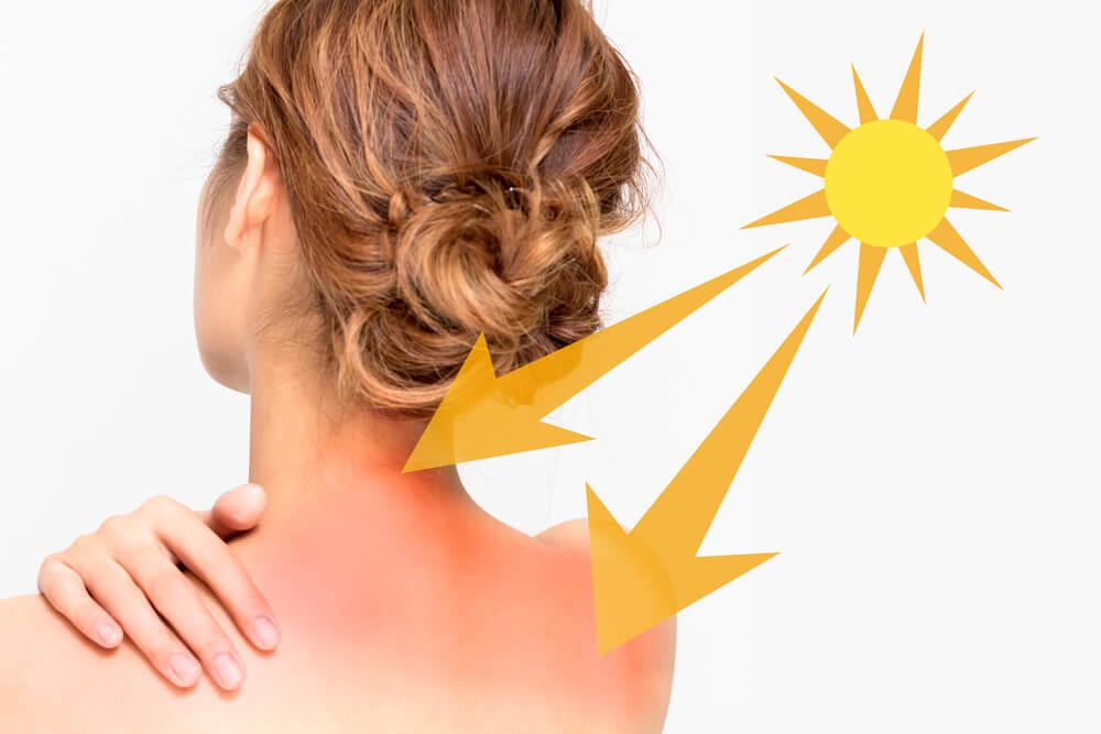 Zaštitite svoju kožu u toplim danima